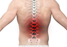 Mid-back Pain